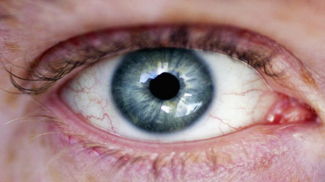 Todo sobre el mal de ojo